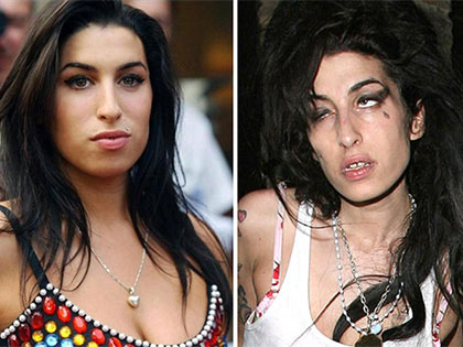 12 Before And After Photos Of Celebrity Drug Addicts