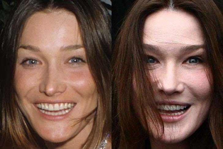 12-celebs-who-are-unrecognizable-after-plastic-surgery_10