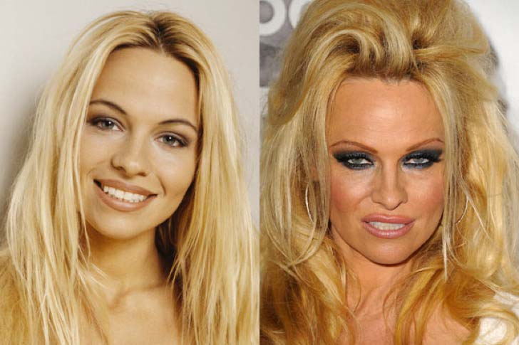 12-celebs-who-are-unrecognizable-after-plastic-surgery_2