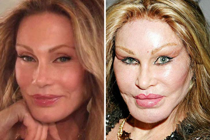 12-celebs-who-are-unrecognizable-after-plastic-surgery_4