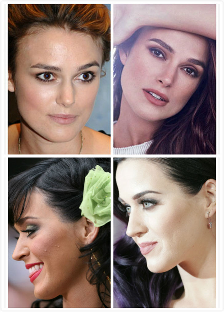 acnes of keira knightley and katy perry
