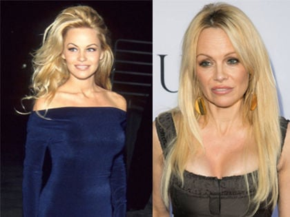 15 Celebs Who Are Unrecognizable After Plastic Surgery