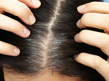 6 Best Tips for the Case of Unwanted Premature Graying Hair