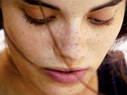 No Dark Patches And Spots! How To Get Clear And Smooth Skin