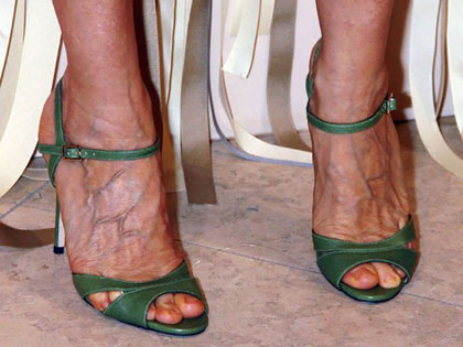 The Good, The Bad, and The Bunions: 10 Celebrity Feet Revealed!